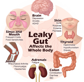 Ep. 53 – What's a Leaky Gut (& What Can I Do About It)?